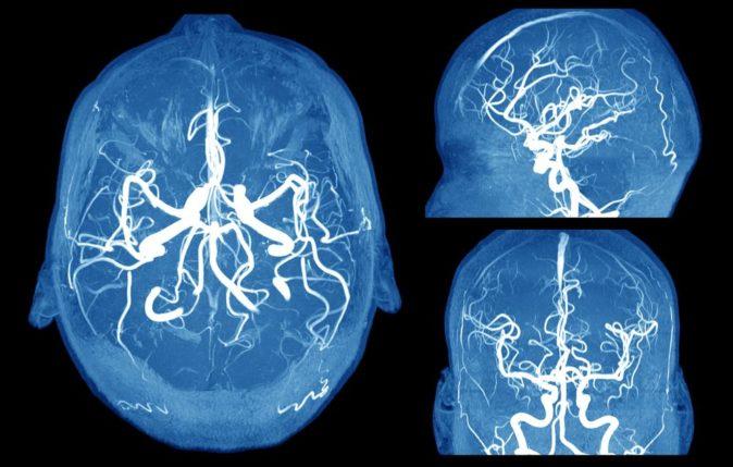 Beyinde oluşan anevrizmanın görünümü