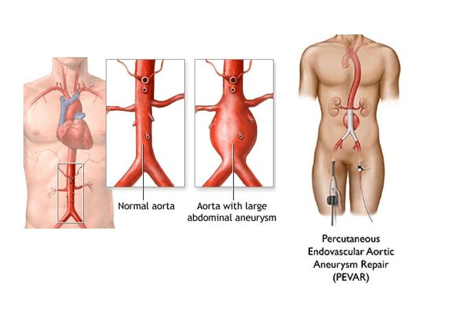 aort genişliği ne olmalı