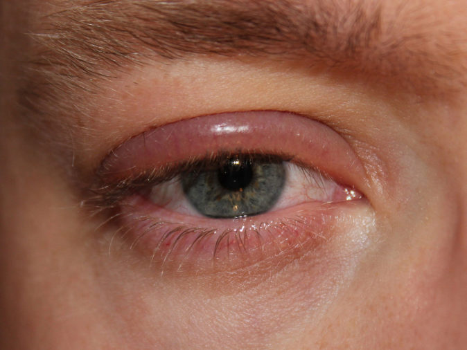 Gözde Arterit