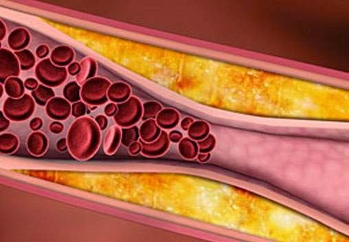 Arteriyoskleroz