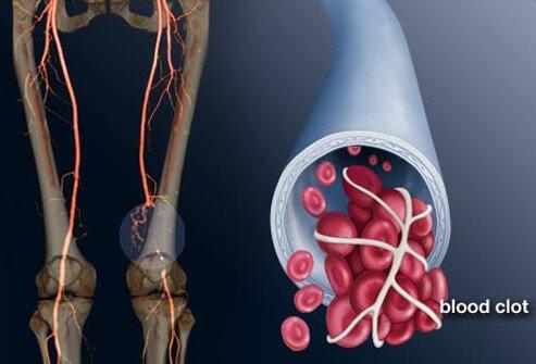 Bacaktaki damar tıkanıklığı Tedavisi Nasıl Yapılır