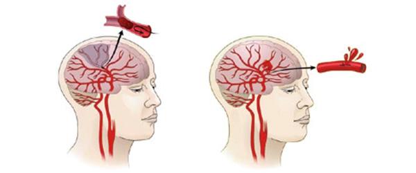 beyin damarlarında incelme