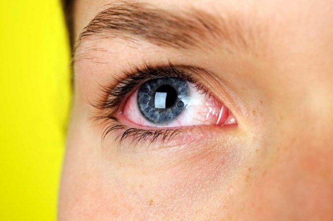 göz damarı çatlaması semptomları