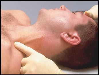 Şah damarı tıkanıklığı ameliyatı